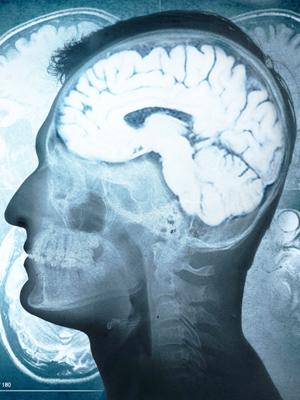 Neurologia - Casa di Salute Santa Lucia
